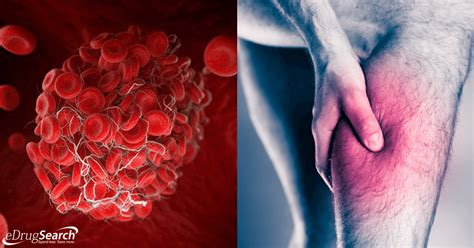 Blood Clots A Frequent Killer You Might Be Ignoring