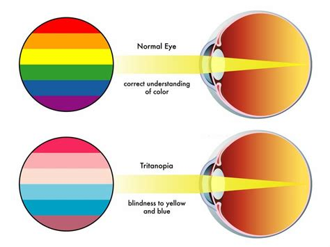 blue yellow color blindness what do colorblind see iris software for