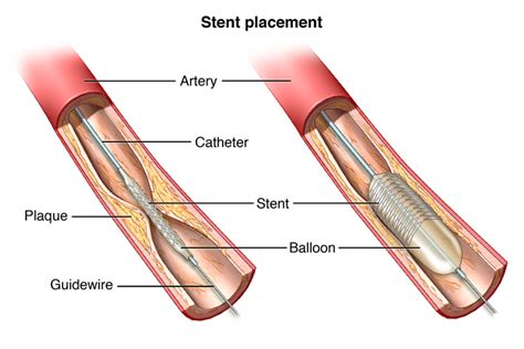 Coronary Angioplasty And Stent Placement The Cardiac Institute