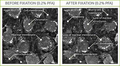 Fixation Cell Pfa Effects Test Cells Imaging