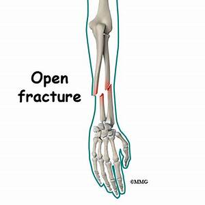 Fractures, Open; Fractures, Compound
