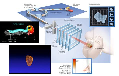 Proton Radiation Locations by Proton Beam Therapy Locations Xron