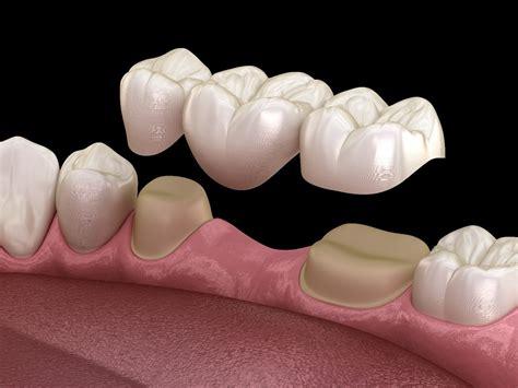 Dental Bridges - Dentist Christchurch - Pathway Dentists