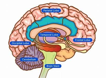 Brain Injury Map Function Ct Basic Interpretation