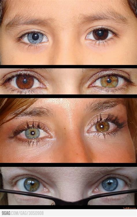 two eye colors can heterochromia just happen siowfa15 science in our