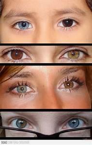 Do I have heterochromia? - GirlsAskGuys