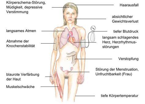 MedizInfo, stoffwechsel : Symptome und Komplikation bei Rachitis