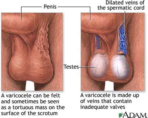 cause d infertilità maschile