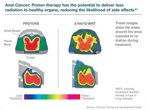 Proton Radiation Locations by Proton Therapy For Cancer Seattle Cancer Care Alliance