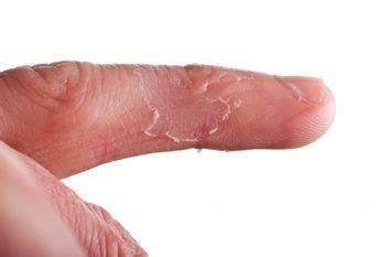 Dyshidrotic Eczema Home Remedies by Dyshidrotic Eczema A Malady Of Concerning Cause And