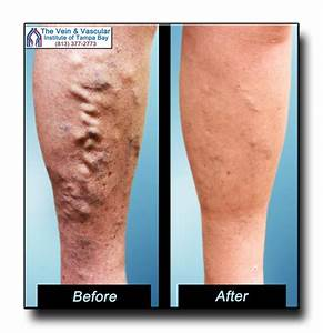 Tampa Varicose Vein Removal Before and After Pictures ...
