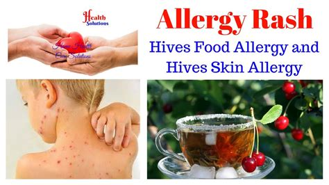 Allergy Rash  Hives Food Allergy And Hives Skin Allergy. Real Estate Agent Newsletter. Australian Payroll Association. Marketing For Chiropractors Z Florist Dallas. Costs Associated With Selling A Home. Products For Online Store Key Risk Management. How To Become Certified Phlebotomist. Belgium Consulate Los Angeles. Clickonce Application Deployment