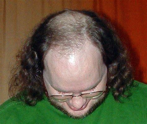 Stop Balding Due to Temporal Hair Loss - VisiHow