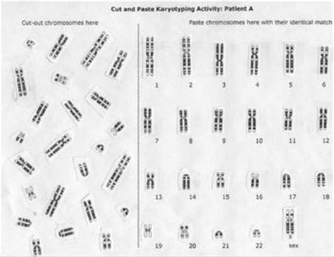 Karyotype Chromosome Lab Activity By Beverly Biology Tpt