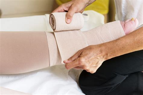 Swollen Arm Or Leg After Cancer Treatment Your Health