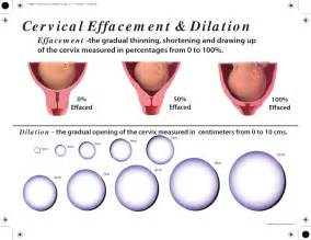cervical effacement and dilation chart search