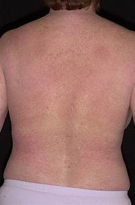 Eczema On Back | www.pixshark.com - Images Galleries With ...