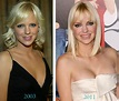 Anna Faris Plastic Surgery Before & After - Celebrity ...