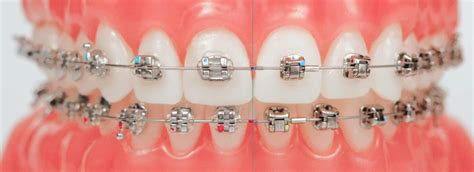 types  braces  teeth orthodontic dental treatment