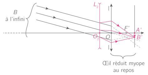 correction myopie lentille l œil accommodation d 233 fauts et corrections 1es 188   final 5549d5e6d1a765.19765969