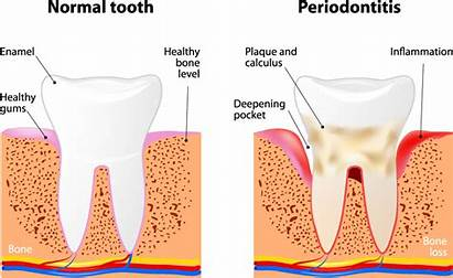 Cleaning Deep Dental Scaling Root Procedure Planing
