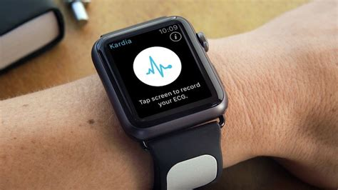 AliveCor Announces Apple Watch 'Kardia Band' for Medical