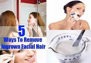Do You Know How To Reduce Ingrown Facial Hair Beauty