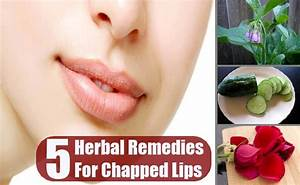 5 Top 5 Herbal Remedies For Chapped Lips Chapped Lips