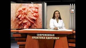 Лечение папиллома вагинальная