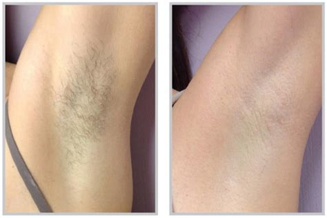 laser hair removal for light hair laser hair removal raleigh nc synergy spa raleigh nc