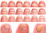 Грибок ногтя рук чем лечить