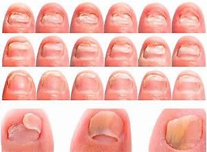 Как вывести грибок на пальце руки