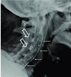 Radiogram Of Cervical Spine Of A Patient With Long