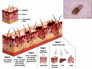 Types Of Skin Cancer Diagram Pictures to Pin on Pinterest ...