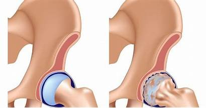 Hip Joint Pain Relief Health Physical