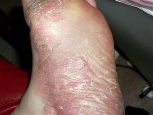 Palmoplantar, psoriasis : Causes, Symptoms, and Treatment