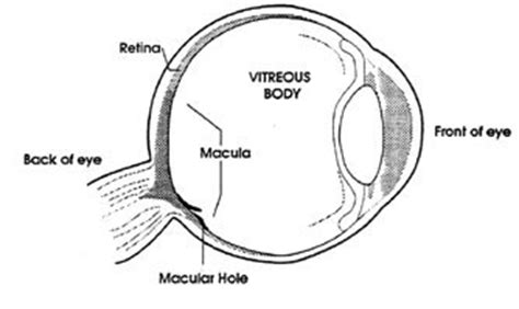 Vitrectomy Chair Cpt Code by Bodywork Central Vitrectomy Surgery And Recovery Information