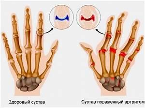 Лечение боли в суставах при гепатите