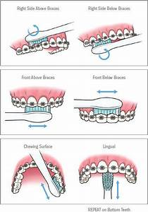 Oral Hygiene Hacks For Kids With Braces