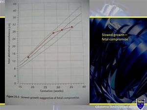 Femur Length Fetus Chart Foetal Monitoring