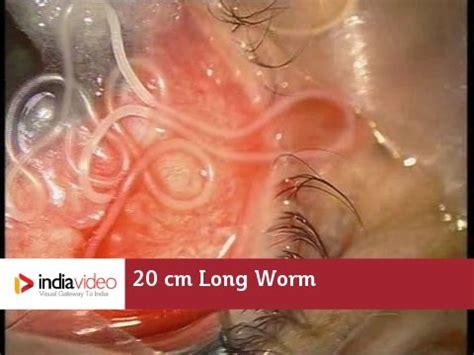 cm long worm   human eye   recorded