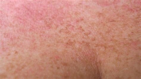 Herpes In The Groin Area Newhairstylesformen2018com