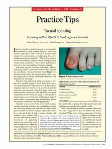 Practice Tips  Toenail Splinting  Pdf Download Available