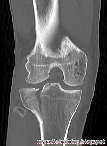 Radiology info hub: Proximal tibial fracture - Schatzker ...