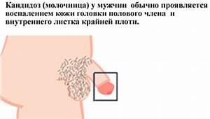 Может ли молочница от простатита