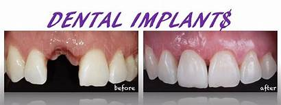 Dental Implants Cost Much Prices Implant