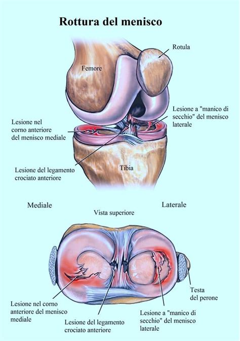 Dolori Ginocchio Interno - dolore al ginocchio gonfiore e infiammazione dietro all