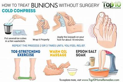 Bunions Surgery Without Treat Bunion Treatment Causes