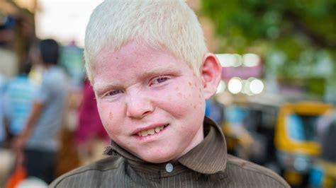 Can Albinos Dye Their Hair