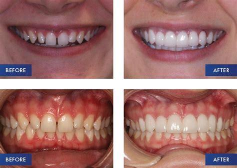 porcelain veneers treatment firstbite dentist essendon